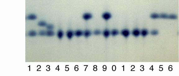 Scoring allozyme variation on electrophoretic gels: