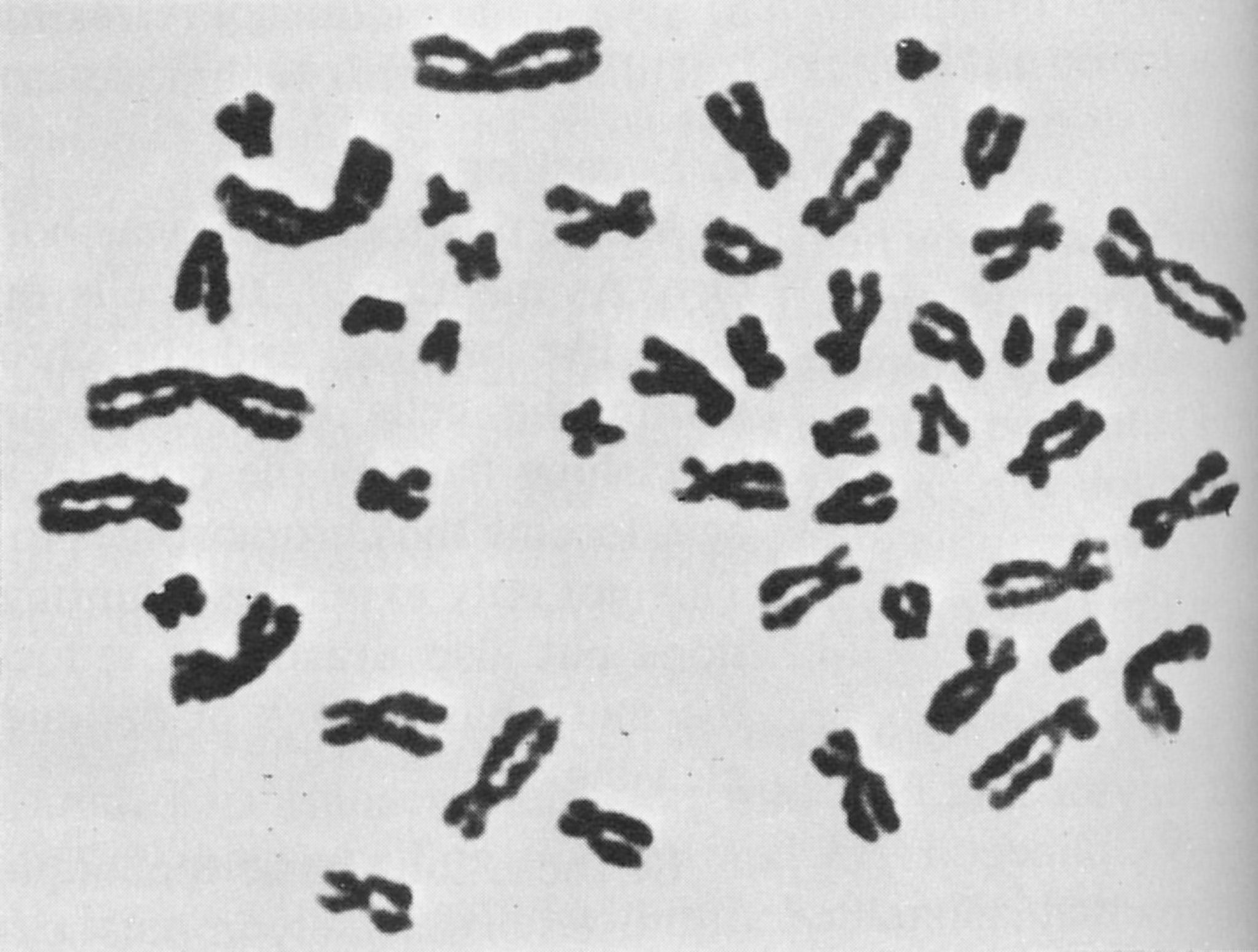 Human karyotypes – Karyotype Worksheet