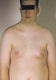 متلازمة كلاينفلتر Klinefelter syndrome Klinefelter_Syndrome_XXYY.jpg