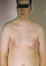 ������� ��������� Klinefelter syndrome Klinefelter_Syndrome_XXYY.jpg