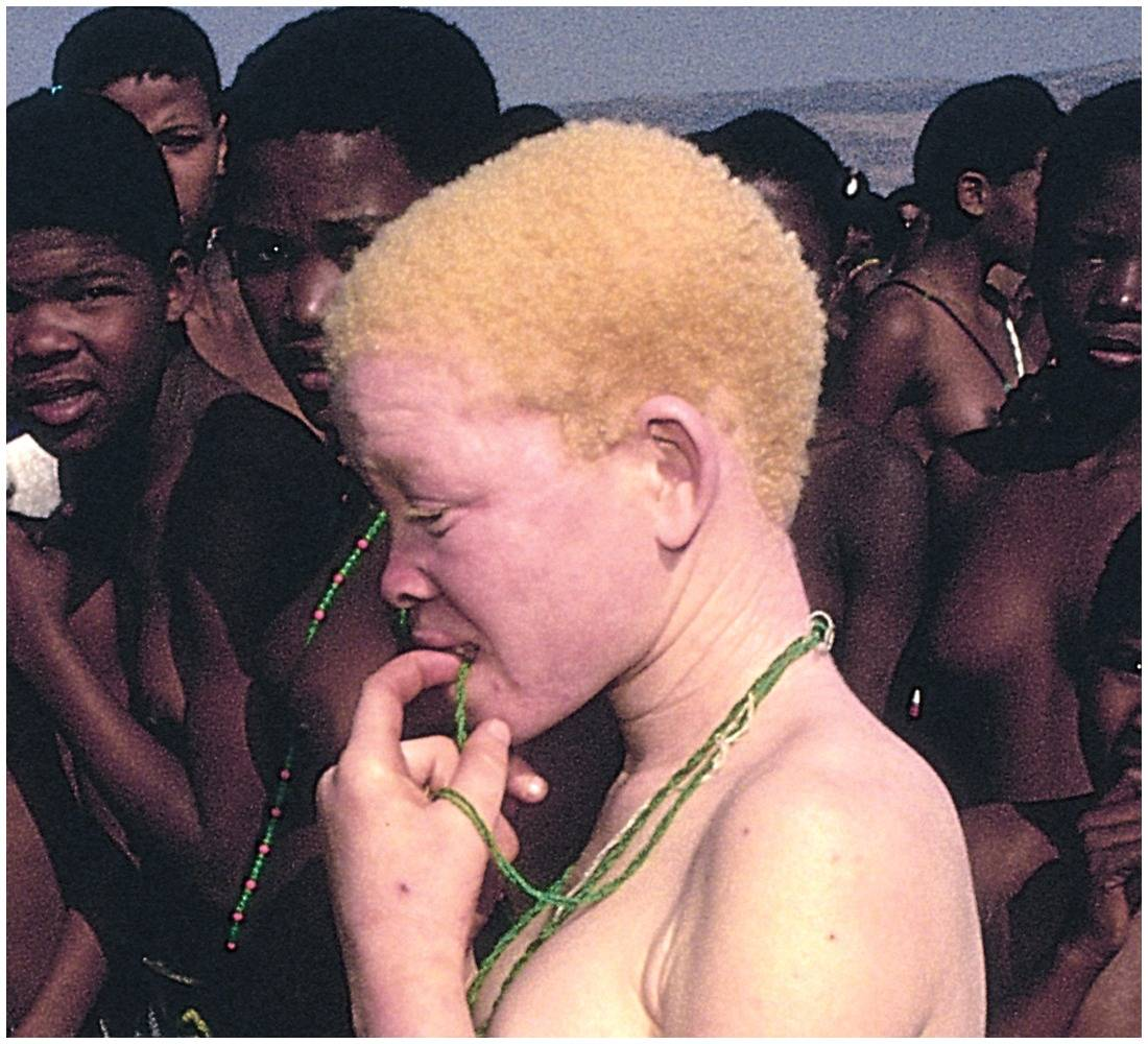 Example Of Albinism