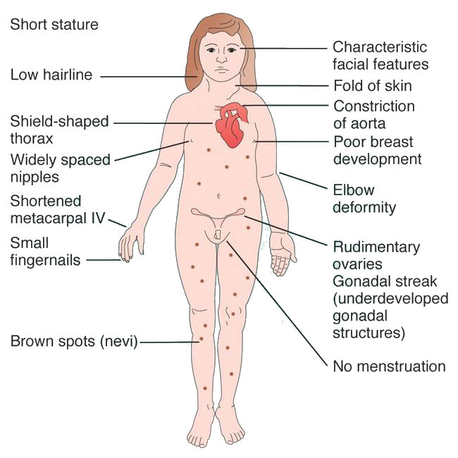 A diagram showing the symptoms and common traits of someone with Turner syndrome.