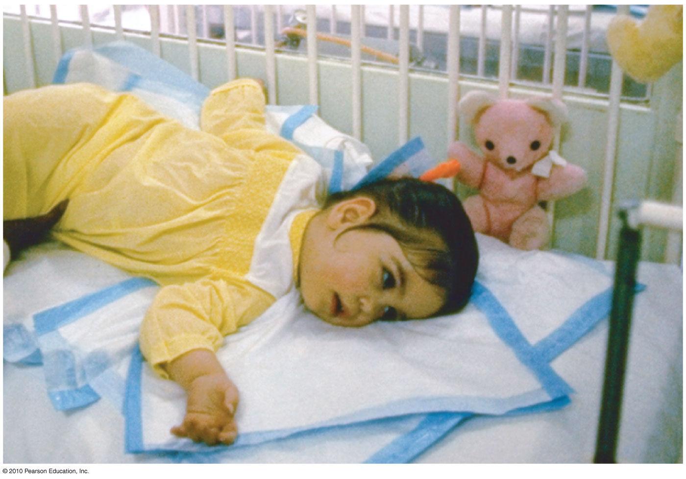 Дети с митохондриальной дисфункцией фото